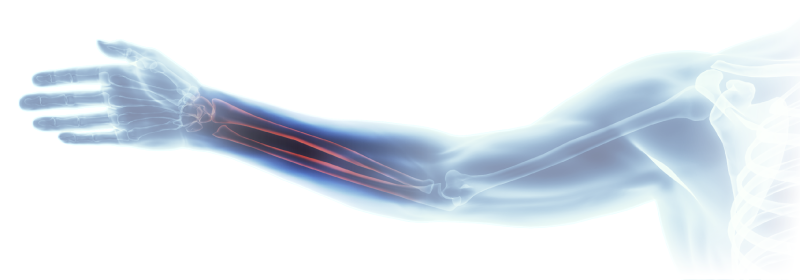Imatge del braç presa amb raigs x